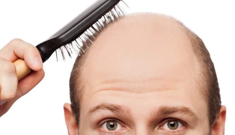 बाल झड़ने का होम्योपैथिक इलाज – बाल झड़ना कैसे रोके