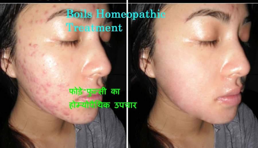 Boils Treatment In Homeopathy – फोड़े फुन्सी