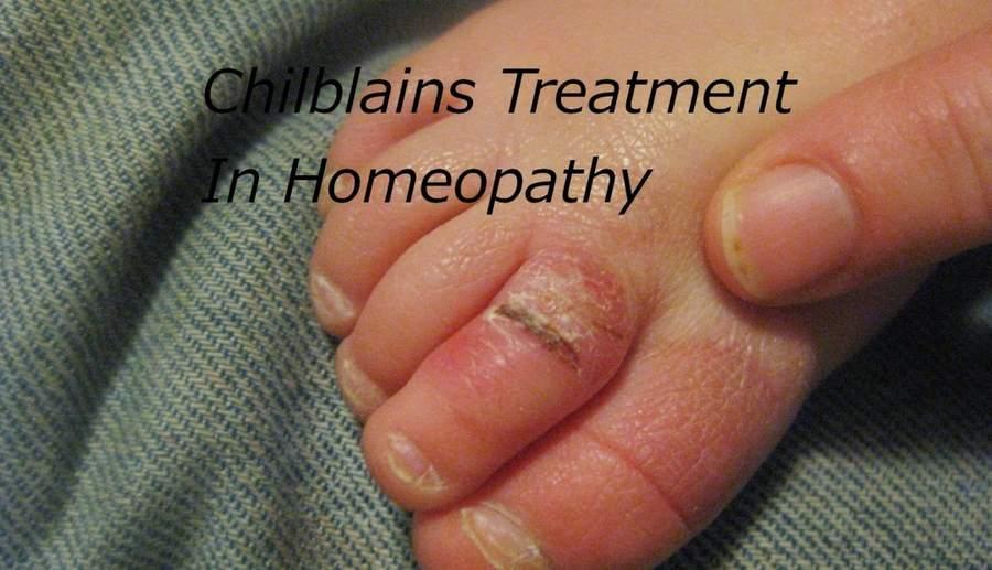 Chilblains Treatment In Homeopathy – बिवाइयां होना