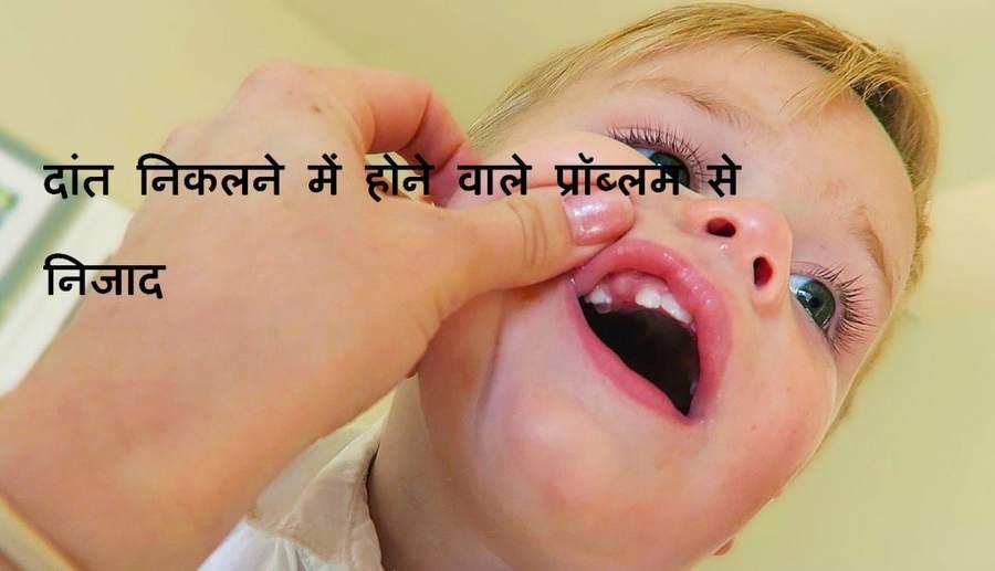 Teething Troubles Homeopathy – दांत निकलना