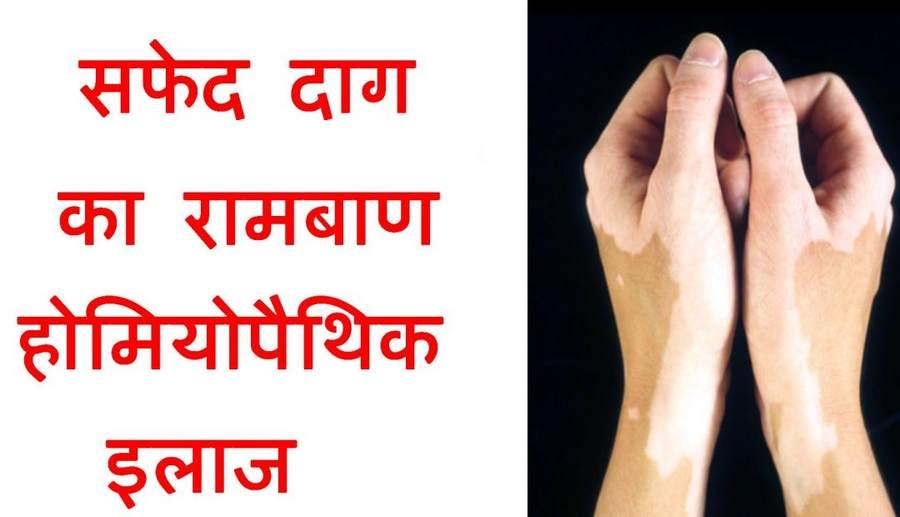 Leucoderma Treatment In Hindi – सफेद दाग का इलाज