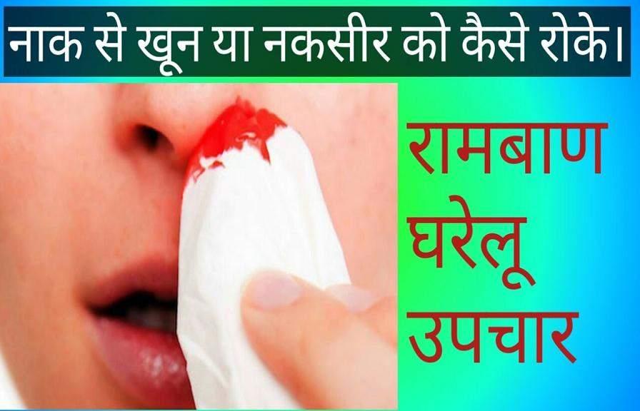 नाक से खून बहने का कारण, लक्षण और घरेलू, आयुर्वेदिक इलाज