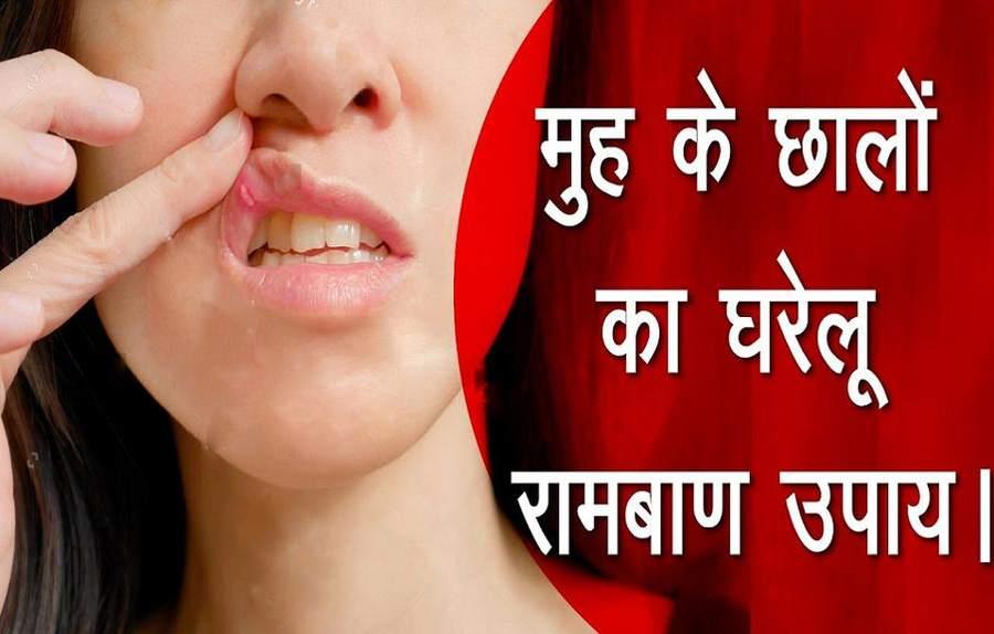 मुंह और जीभ के छाले दूर करने के लिए घरेलू और आयुर्वेदिक इलाज
