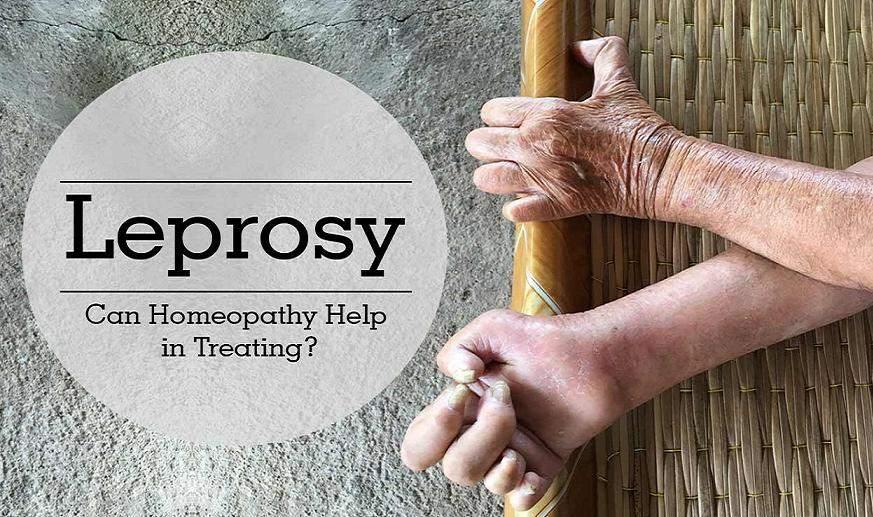 Homeopathic Treatment For Leprosy In Hindi [ कुष्ठरोग का होम्योपैथिक इलाज ]