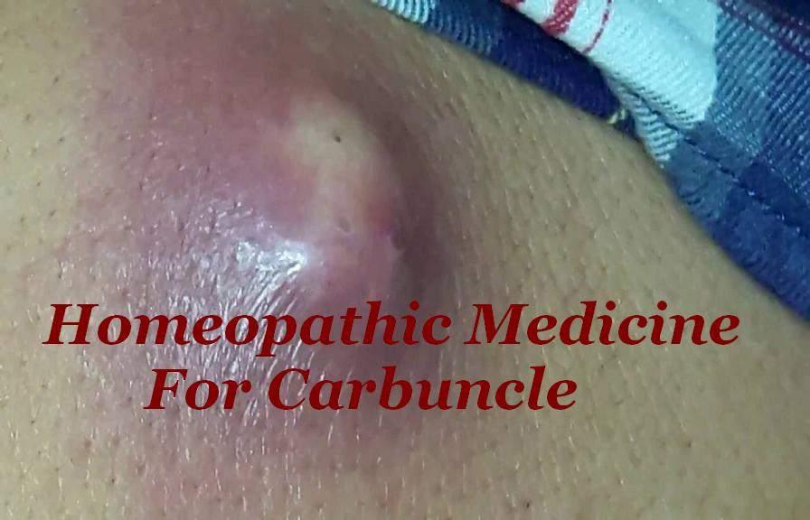 Homeopathic Medicine For Carbuncle In Hindi [ कार्बंकल का होम्योपैथिक इलाज ]
