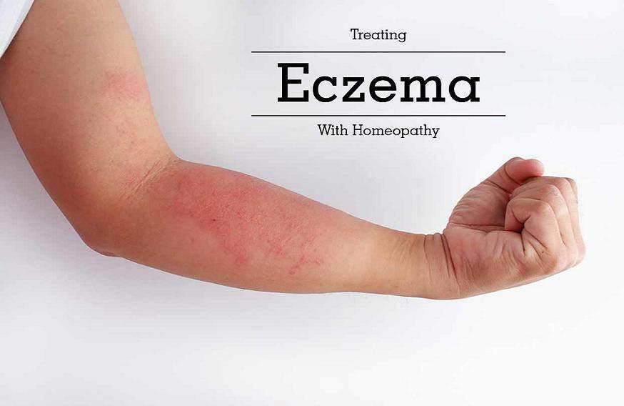 Homeopathic Medicine For Eczema In Hindi [ एक्जिमा, छाजन, अकौता का होम्योपैथिक दवा  ]