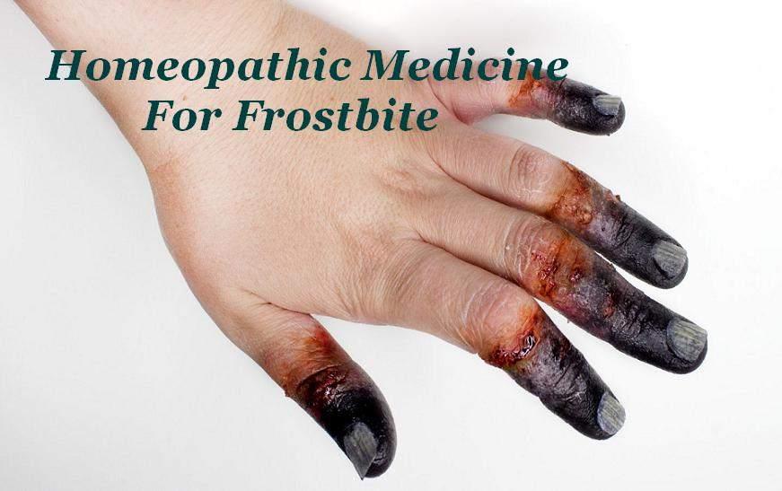 Homeopathic Medicine For Frostbite In Hindi [ बिवाई फटने का होम्योपैथिक इलाज ]