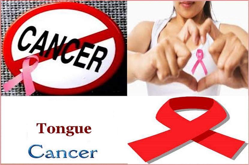 जीभ कैंसर का होम्योपैथिक इलाज [ Tongue Cancer Homeopathic Treatment In Hindi ]