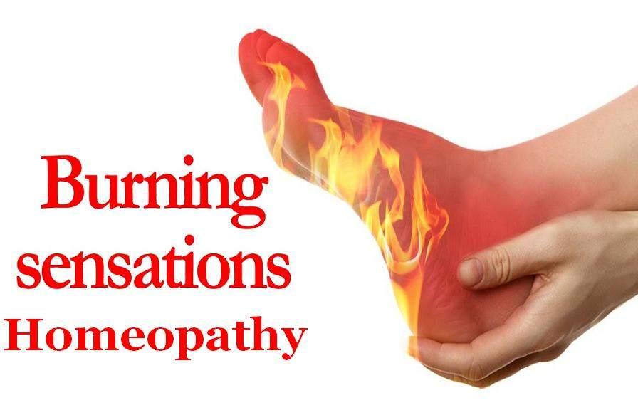 Homeopathy Treatment For Burning In Hindi [ शरीर मे जलन के होम्योपैथिक दवा और उपाय ]