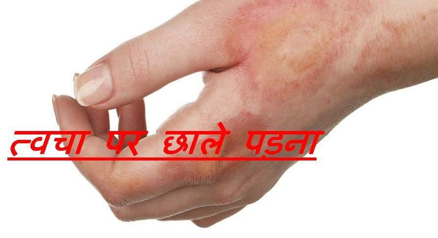 त्वचा पर छाले पड़ना होम्योपैथिक इलाज
