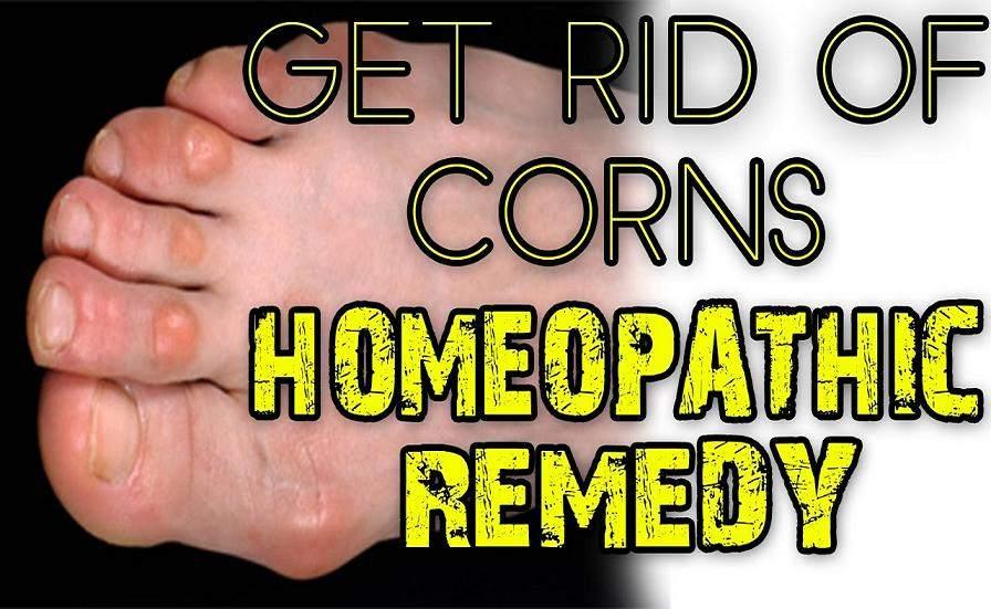 Corns Treatment In Homeopathy In Hindi [ कॉर्न का होम्योपैथिक इलाज ]