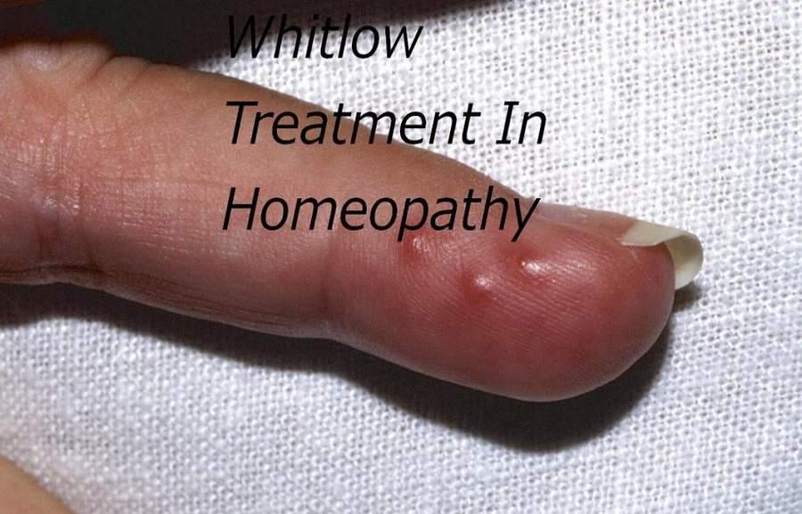 Homeopathic Medicine For Panaris In Hindi [ अंगुलबेड़ा का होम्योपैथिक दवा ]