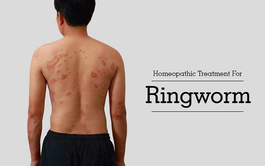 Homeopathic Treatment For Ringworm In Hindi [ दाद का होम्योपैथिक इलाज ]