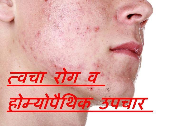 त्वचा रोग व उपचार [ त्वचा के रोग ]