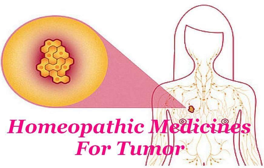 Homeopathic Medicines For Tumor In Hindi [ ट्यूमर का होम्योपैथिक इलाज ]