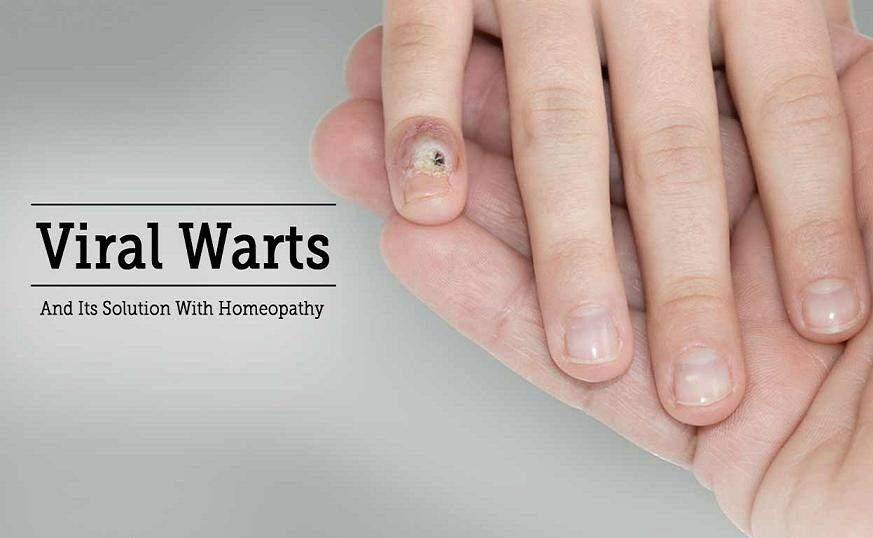 Homeopathic Medicine For Warts In Hindi [ मस्सा का होम्योपैथिक इलाज ]